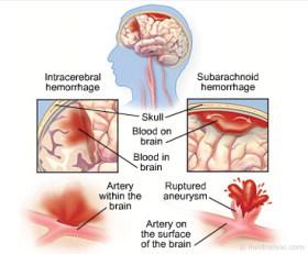 hemorrhagicfull