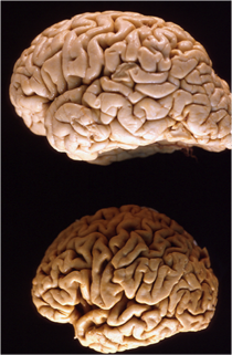 Image of two brains